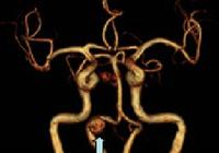 画像診断の精度アップで血管の狭窄や極小がんを早期発見