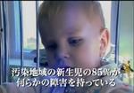 『チェルノブイリ・ハート』 他人事ではない汚染地域の子どもたちの驚愕の実態