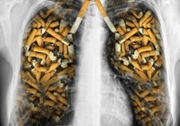 死よりも恐ろしい病気 !? たばこの警告文を「肺気腫」から「COPD」に!