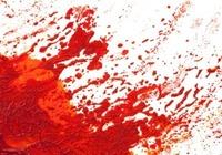 スリム体型でサラサラ血液でもボロボロ血管が死を招く?