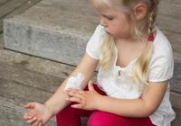 冬に悪化するアトピー性皮膚炎に効果がある成分が判明!?