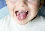 季節の変わり目のできることの多い口内炎、薬を使わずに楽になる方法とは?