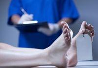 異状死の解剖率はわずか11.1%!死因特定は「オートプシー・イメージング(Ai)」で可能か?