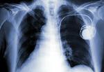 外科手術不要の心臓ペースメーカー! 脚からカテーテルを入れて心臓に