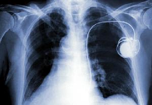 外科手術が不要の心臓ペースメーカー、早期試験で有望性のデータ