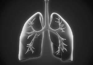 急性・慢性の気管支炎