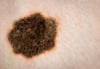セルフチェックできる皮膚がん「ABCDEの法則」で早期発見?