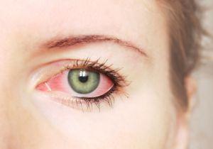 10月以降、はやり目(流行性角結膜炎)が増加中! 感染拡大を防ぐには?