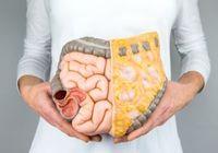 日本人の「腸内環境」は悪化している! 原因は食生活の変化や過激なダイエット