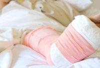骨折した観月ありささん、栗山千明さんも!? 40代女性の4人に1人が骨粗鬆症