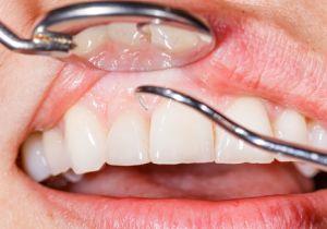 日本人の265万人以上、40歳以上の8割強が苦しむ「歯周病」は、天候急変から3日以内悪化する!?