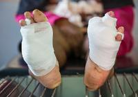 糖尿病による下肢切断は年間2万本 「足ならなんでも診る」専門クリニックが切断に歯止めをかける!