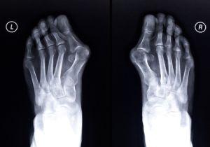 外反母趾も巻き爪も足の構造異常。歪みを治すことで根治も可能