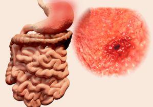乳酸菌は「胃がん」の最大の原因であるピロリ菌の除去にも効果を発揮!
