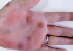 【閲覧注意】これが梅毒にかかった手の平! 国内で女性の感染者が激増