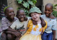 アルビノ(先天性白皮症)への襲撃・誘拐・人身売買・虐殺がアフリカで多発、国連が緊急警告!