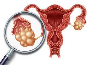 若年性更年期障害を発症しても妊娠できる!? 大切なのは卵巣機能低下の予防法を知ること