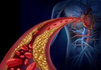 たった8週間で血管年齢が5歳も低下!? 高血圧を予防する乳酸菌の秘密!