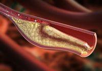 動脈硬化の原因となる「脂質異常症(高コレステロール)」は乳酸菌で改善できる!