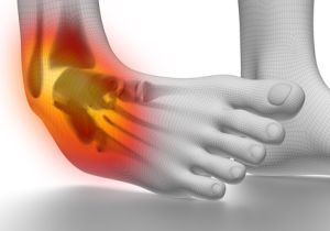 足首のケガを侮ってはいけない理由~心臓や呼吸器系の障害を引き起こすリスクが上昇!