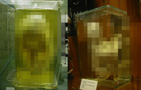 【閲覧注意】結合双生児、頭から角の生えた女性の顔面標本まで「ムター・ミュージアム③」