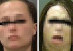 【閲覧注意】自家製合成麻薬「クロコダイル」は中毒患者の相貌を短期間でゾンビ化する!