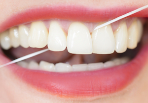 デンタルフロスに虫歯予防の科学的な根拠なし? 効果がないのは正しく使っていないから?