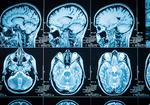 徳永英明さんも発病した「もやもや病」は、日本人医師らが発見した原因不明の「脳」の難病