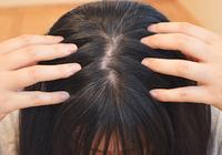 女性の「薄毛」はセルフケアだけでは完治は難しい! 予防と改善のノウハウはあるのか?