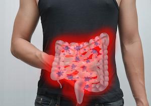 大腸がんも「右側に気をつけろ」!死亡率は20%も高い!発見が遅れるだけでなく遺伝的な要因も?