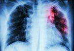 中高年の女性に急増中の「肺マック症」とは? 年間患者数は推計約12万人、死亡者数1300人以上!