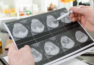 MRI検査で「認知症」の診断と治療が向上! 2025年に65歳以上の3人に1人が……