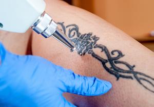 「タトゥー」を入れた日本人の8割以上の人が後悔! <若気の至り>を消す方法とは?