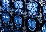 発声できるが言葉を理解できない!「失語症」と「脳症」の解明した脳神経学のパイオニアの物語