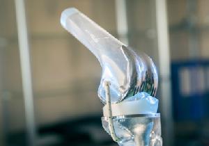 手術件数は年間8万件以上 人工膝関節置換術を受けてよかったと思う患者は96%!!