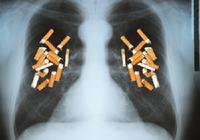 愛煙家や分煙支持派……中村獅童も驚愕!<軽いたばこ>が肺腺がんを招く!?