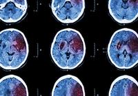 失業で「脳卒中」が増える? 再就職で発症率が約3倍、死亡リスクは4倍以上に!