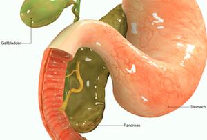 「膵がん」の早期発見につながる血液検査「マルチプレックスプラズモンアッセイ」を開発