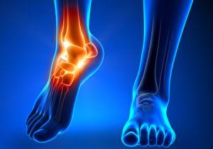 「足」トラブルがあなたの健康寿命を縮める!? 健康と足の密接な関係とは?