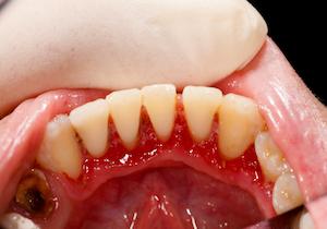 歯周病もアルツハイマー病の原因に! 真犯人「酪酸」が「脳」を侵食する?