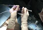 壊れた静脈を「接着剤」でふさぐ!?「下肢静脈瘤」の治療は「より体に優しい」新時代へ