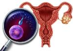 「がん」になっても妊娠・出産をあきらめたくない女性のための「卵巣凍結」とは?