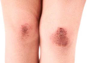「オキシドール」が傷の治りを遅らせる~消毒薬が細胞を破壊する