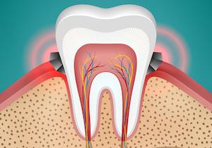 歯周病の改善に「海藻」が効く! 海外では<30歳からはマグネシウムを摂れ>と推奨