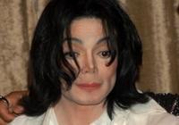マイケル・ジャクソンも悩まされた皮膚病「白斑(尋常性白斑)」は治せる時代に