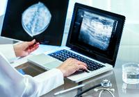乳がんは手術しなくてもいい!? 人工知能が「高リスク病変」のがん化を97%の精度で予測