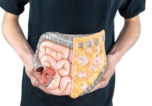 腸内細菌が「がん治療」を左右する!? 「免疫チェックポイント阻害薬」の効果に影響