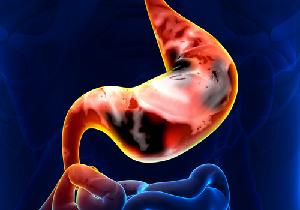 ピロリ除菌で使われる胃薬で胃がんリスクが上昇する?長期使用で胃がんリスクが約24倍