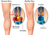 下肢静脈瘤のある人はエコノミークラス症候群のリスクが5倍以上!