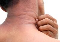 皮膚の常在菌移植で「アトピー性皮膚炎」が改善!成人の10人中6人、小児の5人中4人が症状軽減